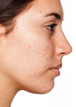 Acne-skin-before