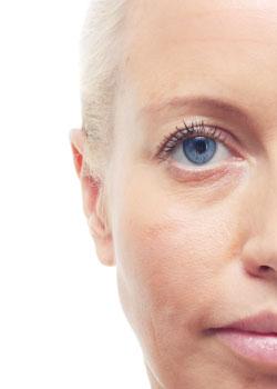 Ageing-Skin-before